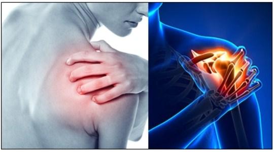 Cara Mengobati Sakit Otot Tulang Belikat
