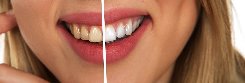 Cara Alami Memutihkan Gigi Menghilangkan Noda Kuning Pada Gigi