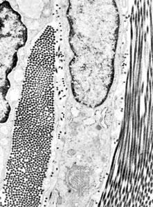 Fibrocito: tejido conectivo, fibrocito con fibras de colágeno