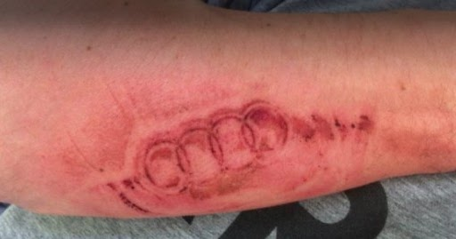 Airbag Was Opened And The Driver Took Tattoo With The Logo