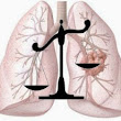 When Should You Contact a Mesothelioma Law Firm? | Mesothelioma Law Firm