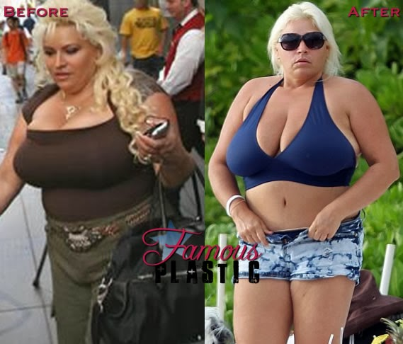 Regret, that beth chapman big boobs the life
