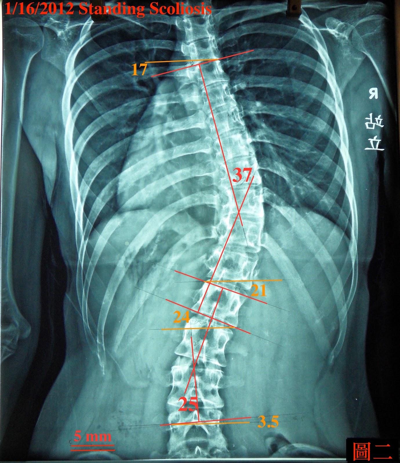 脊椎側彎矯正案例12 - 治療8次成果:37-30度 - 閻曉華脊骨神經醫學網
