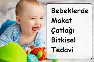 Bebeklerde Makat Çatlağı Bitkisel Tedavi