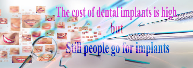 Important to get to know even a brief dental implant london
