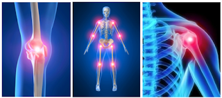 Work-related Musculoskeletal Disorders (WMSDs)