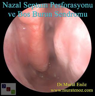 nazal septum perforasyonu + boş burun sendromu