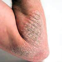 Foto Gatal Psoriasis Kulit pecah-pecah terkadang bisa berdarah lutut dan tumit