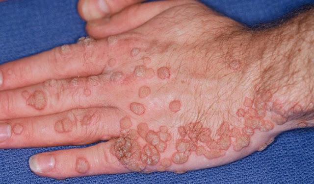 Awas! Hampir Setengah Pria Terinfeksi HPV yang Sama Bahayanya Dengan HIV!