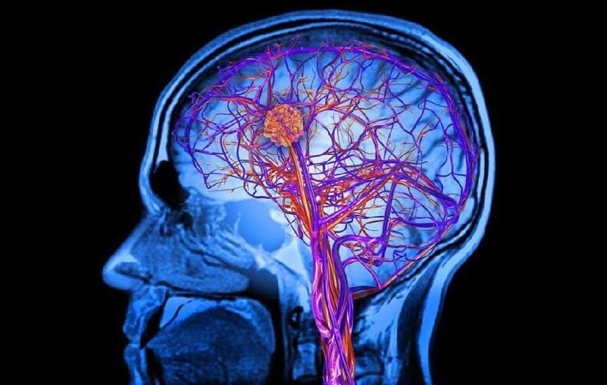 Tanda dan Gejala Kanker Otak