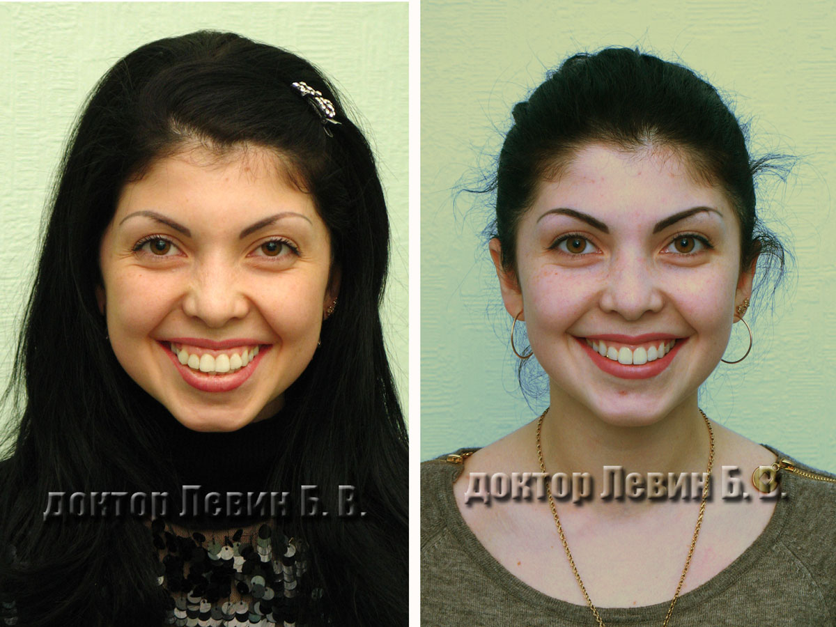 Два фото лица . До лечения и после лечения. Демонстрирует возможности брекет систем в коррекции черт лица.