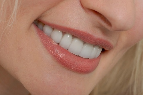 răng sứ sử dụng được bao lâu -5
