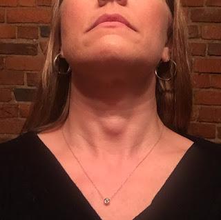 Tales of Tanya: Lump in my throat