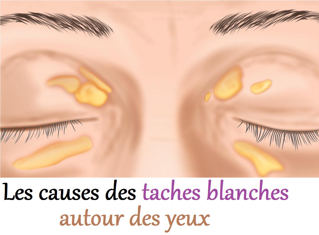 Des taches blanches autour des yeux ce sont ses causes - Tache blanche coup de soleil ...