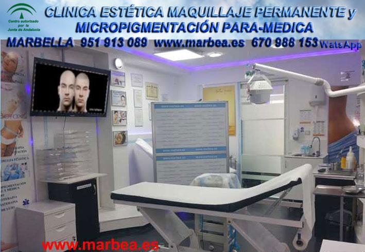 clinica estética maquillaje permanente  capilar Estepona, y maquillaje permanente en Estepona,