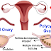 You Can Cure Polycystic Ovary Syndrome In Budget Friendly Way Using This Top 10 Natural Remedy!