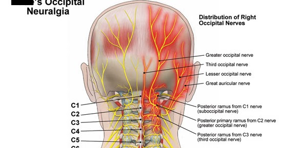 My Life With Occipital Neuralgia Pre Op Yesterday And