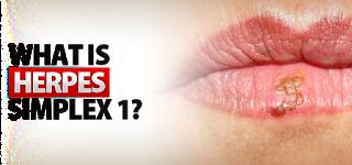 Cara Mengobati Herpes di Kemaluan Pria dan Wanita