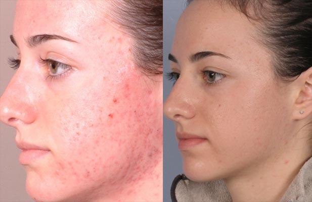 skin peel acid facial chemical peels