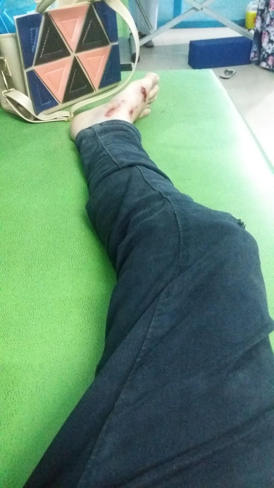 Sakit sendi akibat gangguan jin