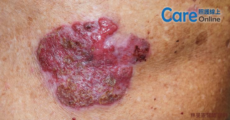 皮膚鱗狀細胞癌的照片