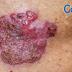 不容忽視的皮膚癌 – 鱗狀細胞癌