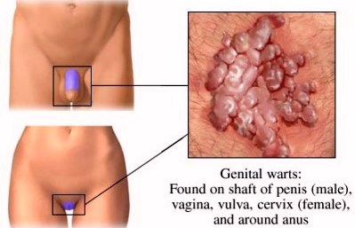 Oral sex with warts on vagina