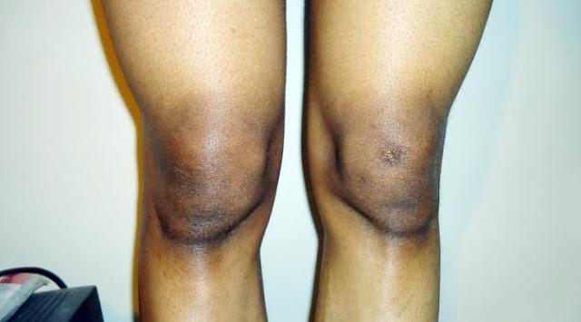 Cara Mencerahkan Lutut Hitam