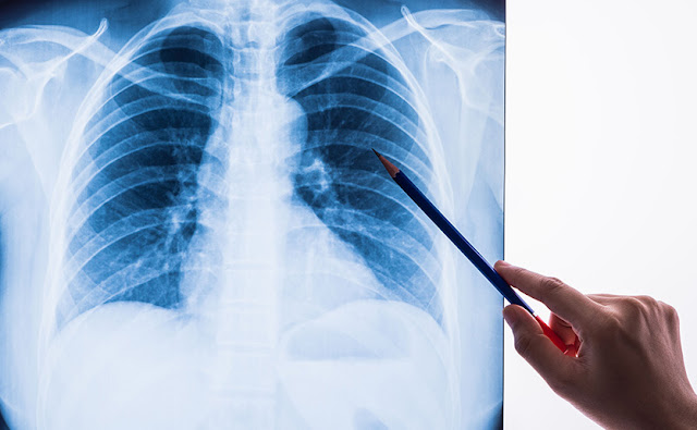 x-rays - Ultraviolet rays