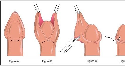 la circuncisión qué es la circuncisión