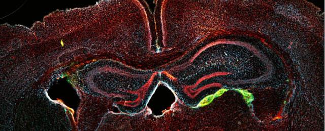 علماء تمكنوا من تحويل خلايا الدم لخلايا عصبية فاعلة