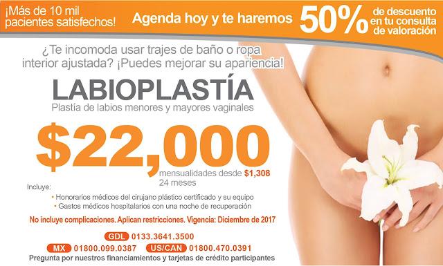Labioplastia - Precio de Paquete de Labioplastia en Guadalajara Mexico