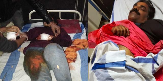UMARIA MP: लड़की के हाथ नहीं काटे, बहादुर बेटी ने हत्यारों का मुकाबला किया | CRIME NEWS