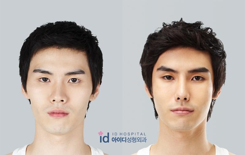 Id Hospital Korea Plastic Surgery Men Plastic Surgery
