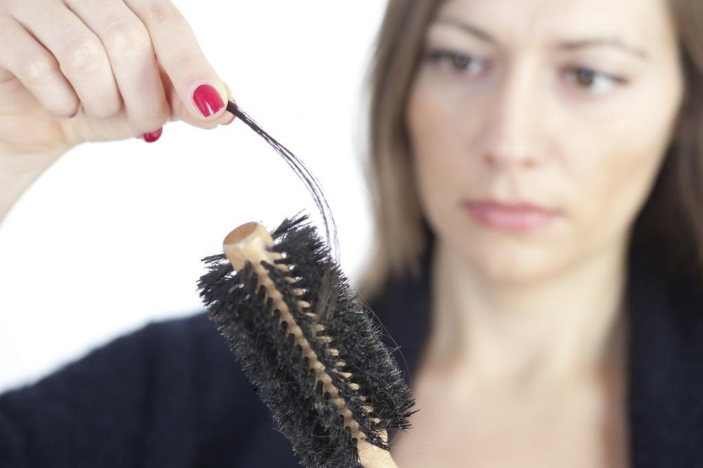 El tratamiento de la alopecia los métodos públicos del tratamiento