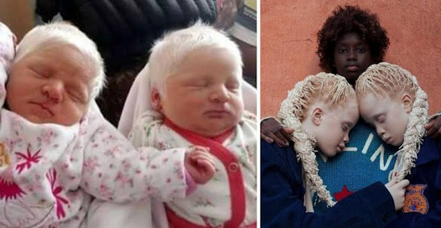 Albino Twins Amaze The World With Their Hair Whiter Than Snow