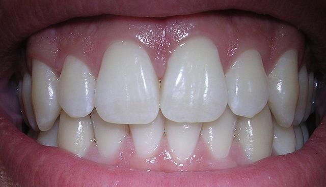 Tips Membuat Gigi Putih Bersih Dengan Cepat