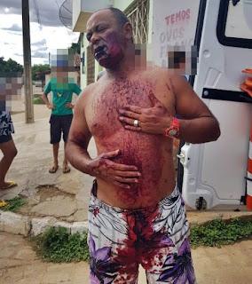 Em Soledade, PB, homem foi bater na mulher e acabou baleado com tiro de espingarda.