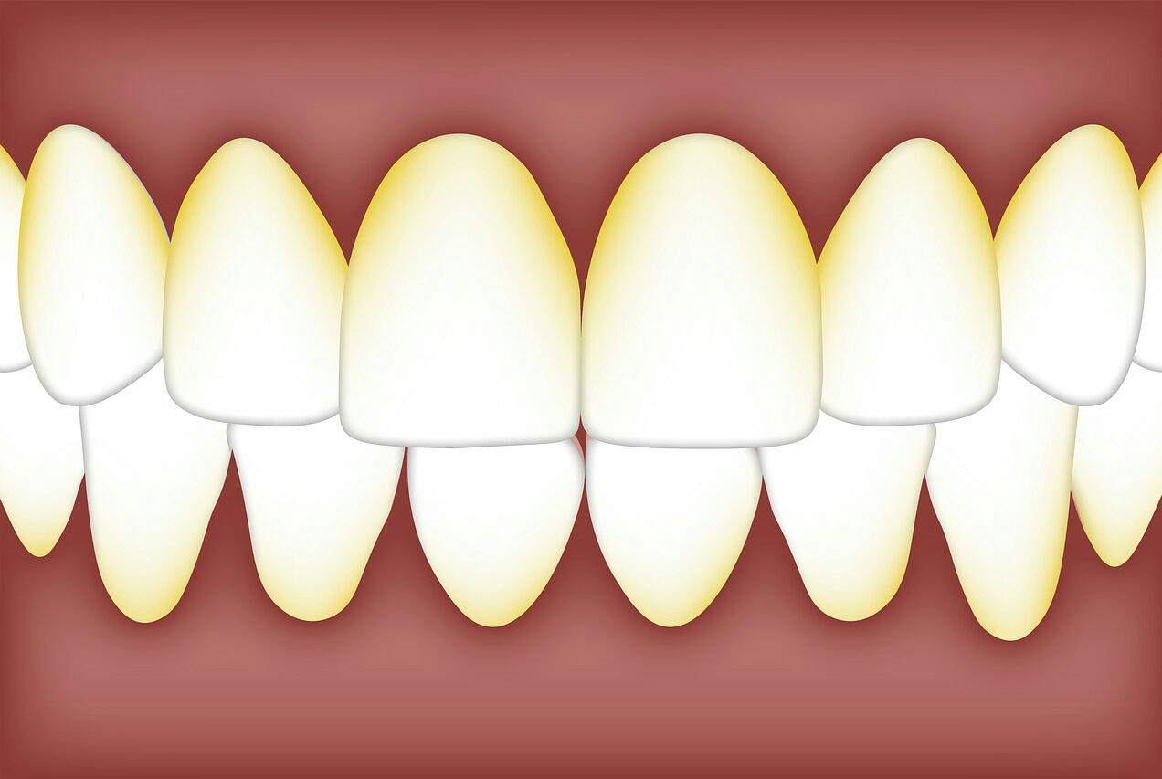 Tanda Tanda Karang Gigi Dan Cara Pencegahannya Bangadjie Com