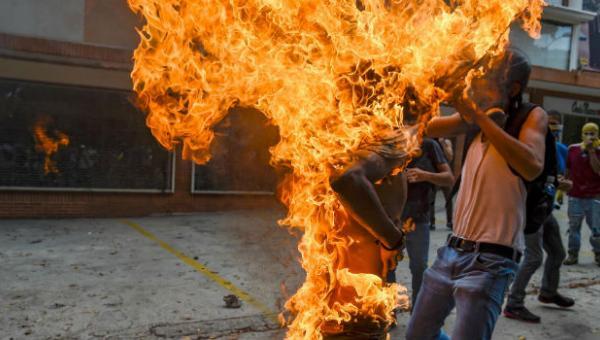 Imagen de joven quemado durante protesta en Venezuela fue nominada al World Press Photo