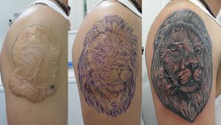 tatuaje cicatriz hombro