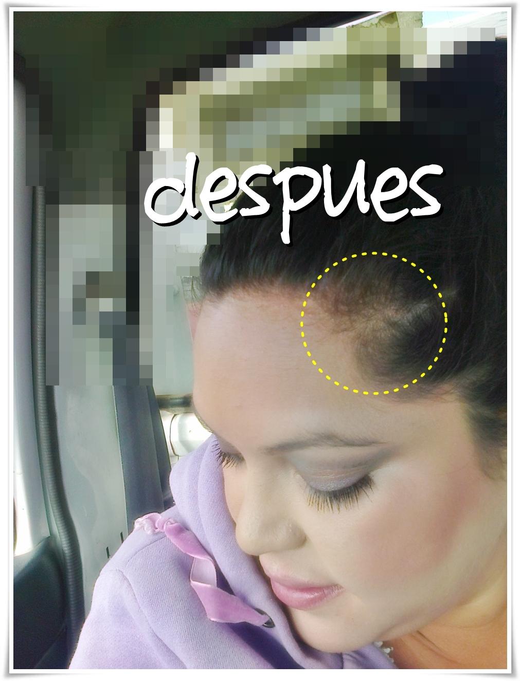 Mi Makeup Love  Solución efectiva y barata para la caída del cabello 7ce2b7ceb177