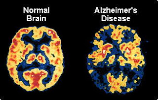 Alzheimer's Disease Brain Activity Image