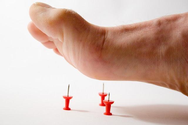 Athletes Foot Remedy