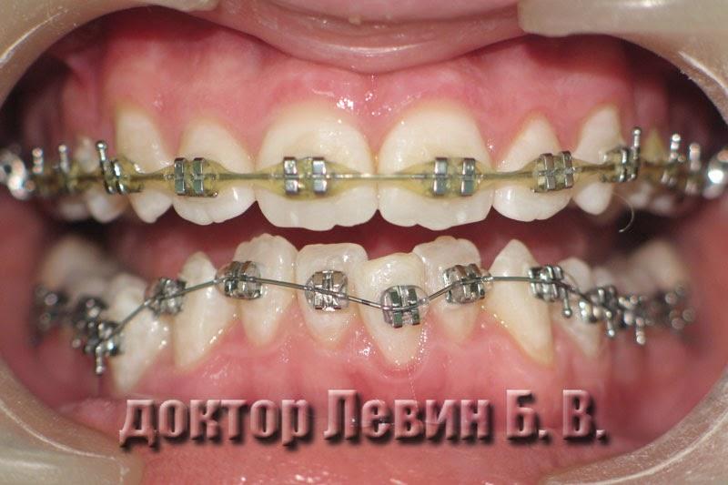 Установлены брекеты и на нижний зубной ряд через 8 месяцев после начала ортодонтического лечения, фотография, стоматология ЦКС, Харьков.