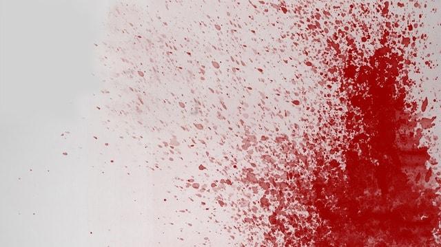 Adakah Darah Itu Najis? Macam Mana Jika Darah Luka Keluar Semasa Solat?