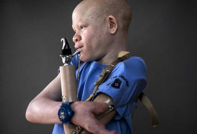 Mira el infierno que viven los albinos en África. Son el platillo más caro del mundo… 5