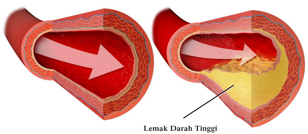 Obat Penghancur Lemak Dalam Darah Tradisional