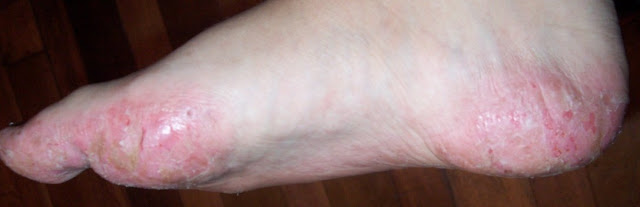 Dyshidrotic Dermatitis: Symptoms And Causes