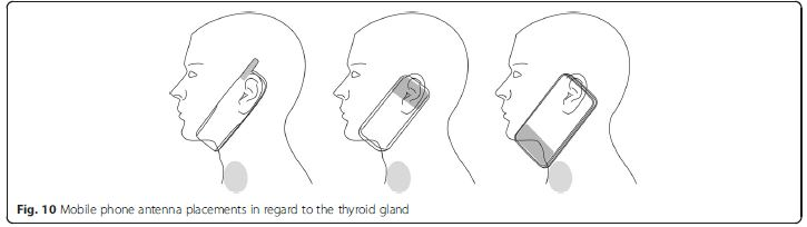 Electromagnetic Radiation Safety: Thyroid Cancer & Mobile Phone Use